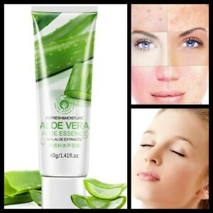 Strong Dark Spots Acne Scar Removal With Aloe Vera Cream Clarifying skin