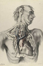 Framed Vintage Medical Print – Inside the Human Chest (Picture Anatomy Pathology