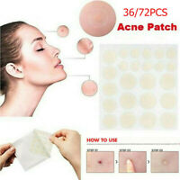 36PCs Skin Tag & Acne Patch NEW Hydrocolloid Acne and Skin Tag Remover Patches