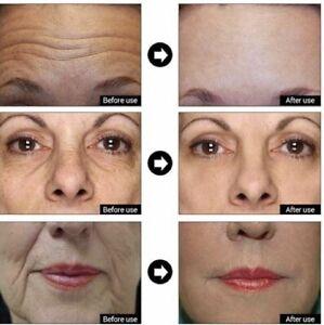 Hyaluronic Acid + Matrixyl 3000 Peptide Gel Cream Face & Eye Wrinkle Serum