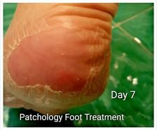Patchology Feet Exfoliation Treatment. Baby Foot Feeling! Amazing Result!