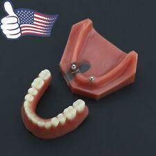 US Dental 2 Implants Overdenture Typodont Teeth Model Lower Jaw Demo Model #6007