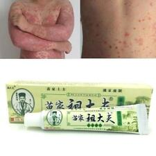 2018 15g Herbal Psoriasis Ointment Dermatitis Eczematoid Treatment Skin Cream DE