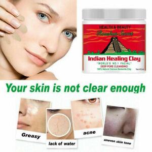 Aztec Indian Secret Healing Clay Calcium Bentonite 25g, 50g, 100g, 200g, 453g