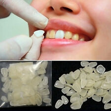 100pcs Dental Super Thin Whitening Veneers Resin Teeth Upper Anterior Shade Nice