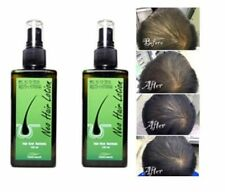 10 pcs Hair Treatment Root Nutrients NEO HAIR LOTION 120 ML. Green Wealth NEW