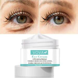 Under Eye Cream Gel Remove Dark Circles Crows Feet Lift Puffiness 30g Bags V8A9