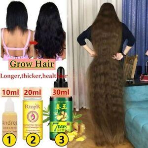Effective Hair Growth Essence Fast Thick for Hair Prevent Hair Loss Damaged Hair