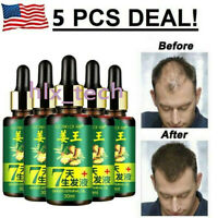7 Day Ginger Germinal Hair Regrowth Serum Hairdressing Oil Hair Loss Treatment