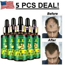 7 Day Ginger Germinal Hair Regrowth Serum Hairdressing Oil Hair Loss Treatment