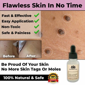NEW SAFE SKIN TAG REMOVER OIL MOLE WART ACNE LIQUID PIMPLE PATCH REMOVAL SPOT