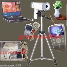 DigitalElectronic Colposcope video SONY Carema800,000 pixels wLED Handle &Tripod