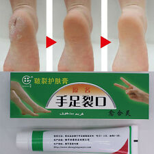 Cracked Heels Balm For Very Dry Rough Feet Hard Skin Cream Effective Anti por