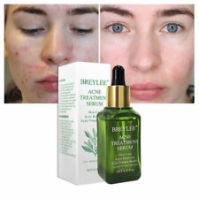 BREYLEE Facial Acne Treatment Serum Shrink Pores Repair Skin Remove Pimple