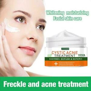 Repair Face Cream Acne Scar Removal Whitening Spots Stretch Treatment V5N1