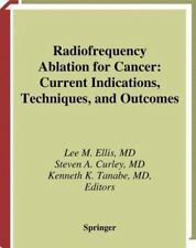 Radiofrequency Ablation for Cancer : Current Indications, Techniques, and...