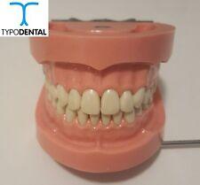 Dental Typodont Model TRM263Hard Gingiva compatible with Articulator