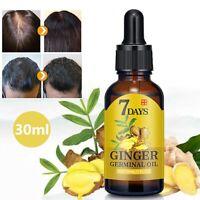 30mlFast Hair Growth Dense Regrowth Ginger Serum Oil Anti-Loss Treatment Essence
