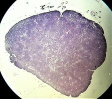 Antique Microscope Slide. W. Watson. T/S of Human Pineal Gland.