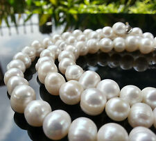 "Beautiful natural 9-10mm Ringed White Pearl Necklace 18""+ Bracelet 7.5"" Set"