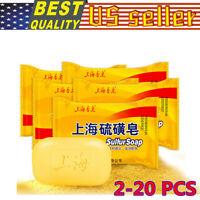 2-20 PCS Sulfur Soap Oil-control Acne Treatment Blackhead Remover Soap Skin Care