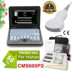 Ecografo digitale per laptop scanner ad ultrasuoni, sonda convessa 3,5MHz CE FDA