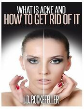 WHAT IS ACNE AND HOW TO GET RID OF IT - ROCKEFELLER, J. D. - NEW PAPERBACK BOOK