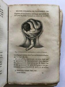 Guide Pratique de l' Accoucheur et de la Sage-Femme. - 1865