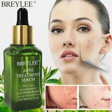 Acne Treatment Serum BREYLEE Tea Tree Clear Skin Serum Clearing Severe Acne 17ml