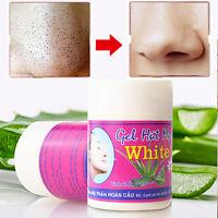 Aloe Vera Whiteheads Blackhead ACNE Removal Pore Cleansing Nose Mask