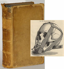 James Garretson System of Oral Surgery dentistry 1881 illustrated mouth diseases