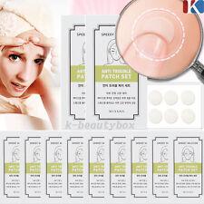 10PCS(120patches) MISSHA Speedy Solution Anti Trouble Patch  Acne &Blemish patch