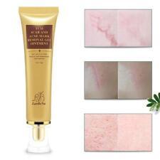 Removal Cream Skin Acne Spots Treatment Repair Face Cream LanBeNa Acne Scars 30g