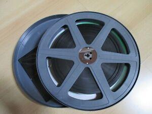 16 mm Film: Heilen durch Gen-Technik?