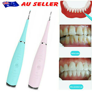 Tooth Stains Tool Dental Scaler Tartar Calculus Plaque Remover Electric Sonic AU