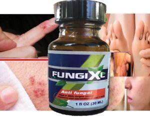 Medicated gel Treatment Eczema Psoriasis Rosacea Dermatitis Shingles Anti fungal