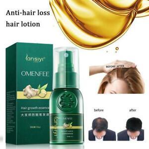 30 ml Fast Growth Hair Liquid Ginger Germinal Serum Loss Treatement Spray