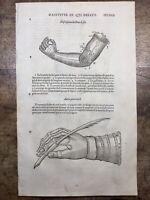 Ambroise Paré 1585 Gravures Bras Mécanique Automate Prothèse Médecine Orthopédie