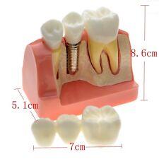Dimostrazione della corona 5: 1 del modello di insegnamento di Dental Typodont