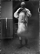 lot 11 négatifs photo verre photo an. 1910 - médicale maladies elephantiasis