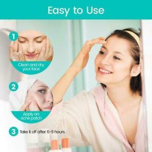 1x Acne Patch Anti-Acne Blemish Dark Spot Pore Dirt Fast Devices Cover Q7E7