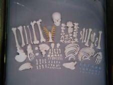 Somso Unmounted Human Skeleton
