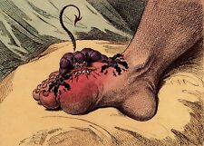 The Gout by James Gillray Art Print 11x8 inches Repro 1799
