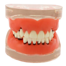 Dental Typodont Teeth Model Pathological Periodontal disease 4017# Adult