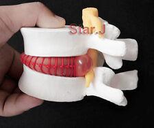 Human Cervical Spinal Cord Vertebral Intervertebral Disc Spine Display Model