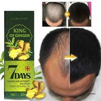 7 Days Ginger Germinal Serum Essence Oil Loss Treatement Growth Hair Regrow 30ml