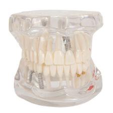 Detachable Dental Human Teeth Pathological Model Disease Study Teaching Anatomy