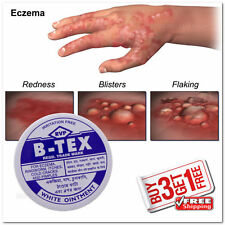 [DFS-UTT] B-Tex Ayurvedic Cream For Itches Eczema Ringworm 14g {BUY3 GET1 FREE}