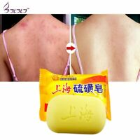 Sulfur Soap Oil-control Acne Treatment Blackhead Remover Whitening Cleanser