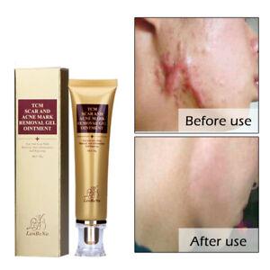 Acne Scar Removal Cream Skin Repair Face Cream Acne Spots Acne Treatment